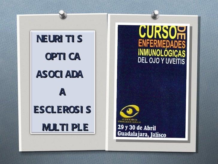 NEURITIS  OPTICA ASOCIADA  A  ESCLEROSIS MULTIPLE