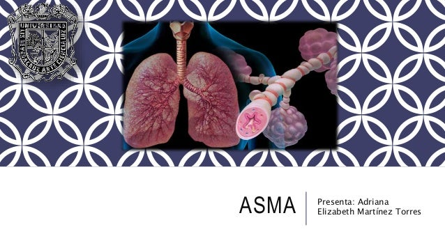 ASMA Presenta: Adriana Elizabeth Martínez Torres