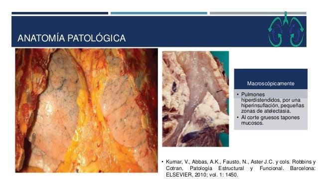 ANATOMÍA PATOLÓGICA • Kumar, V., Abbas, A.K., Fausto, N., Aster J.C. y cols. Robbins y Cotran, Patología Estructural y Fun...