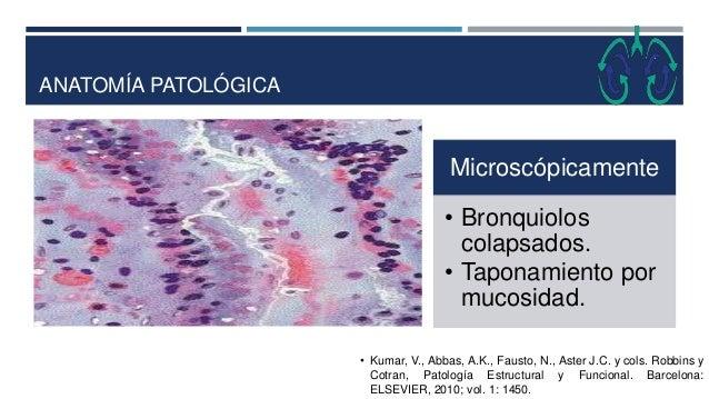 ANATOMÍA PATOLÓGICA Microscópicamente • Bronquiolos colapsados. • Taponamiento por mucosidad. • Kumar, V., Abbas, A.K., Fa...