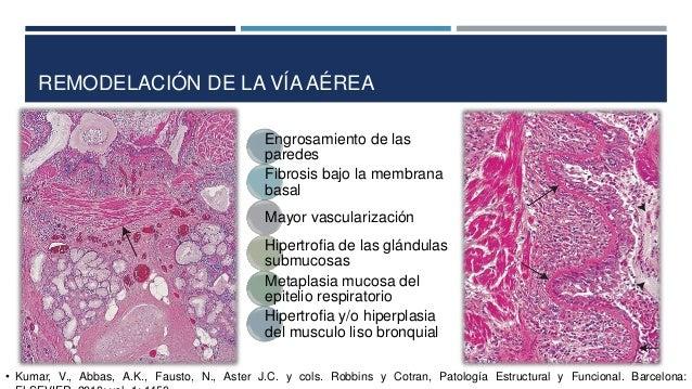REMODELACIÓN DE LA VÍA AÉREA Engrosamiento de las paredes Fibrosis bajo la membrana basal Mayor vascularización Hipertrofi...