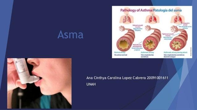 Asma Ana Cinthya Carolina Lopez Cabrera 20091001611 UNAH