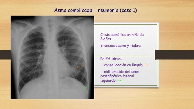 Asma y atelectasia