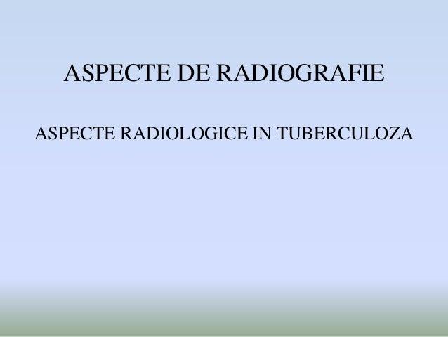 ASPECTE DE RADIOGRAFIE ASPECTE RADIOLOGICE IN TUBERCULOZA