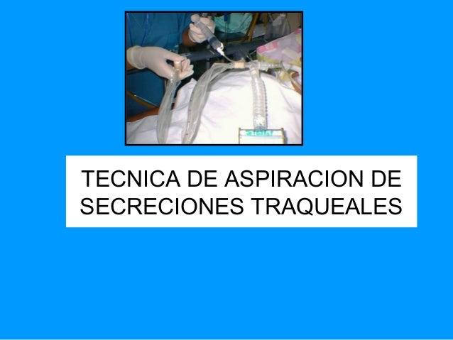 TECNICA DE ASPIRACION DE SECRECIONES TRAQUEALES