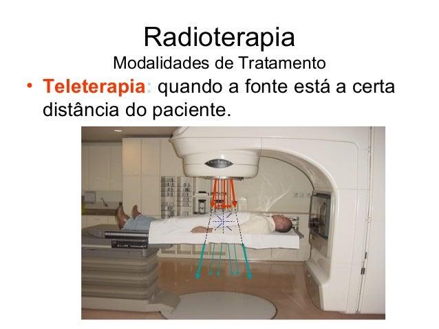 Radioterapia para cancer de prostata pdf