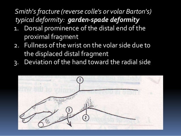 Assessent And Radiology Of Distal End Radius Fracture