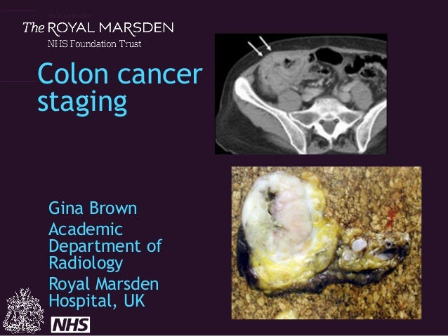 The Royal Marsden Colon cancer staging Gina Brown Academic Department of Radiology Royal Marsden Hospital, UK