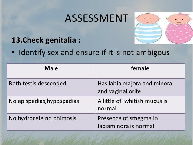Assessment newborn