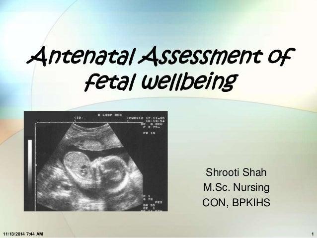 Antenatal Assessment of  fetal wellbeing  Shrooti Shah  M.Sc. Nursing  CON, BPKIHS  11/13/2014 7:44 AM 1