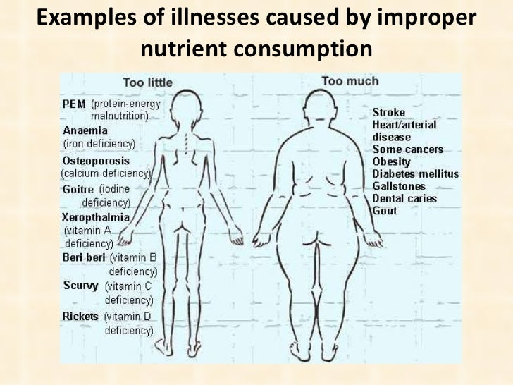 Examples of illnesses caused by improper nutrient   consumption
