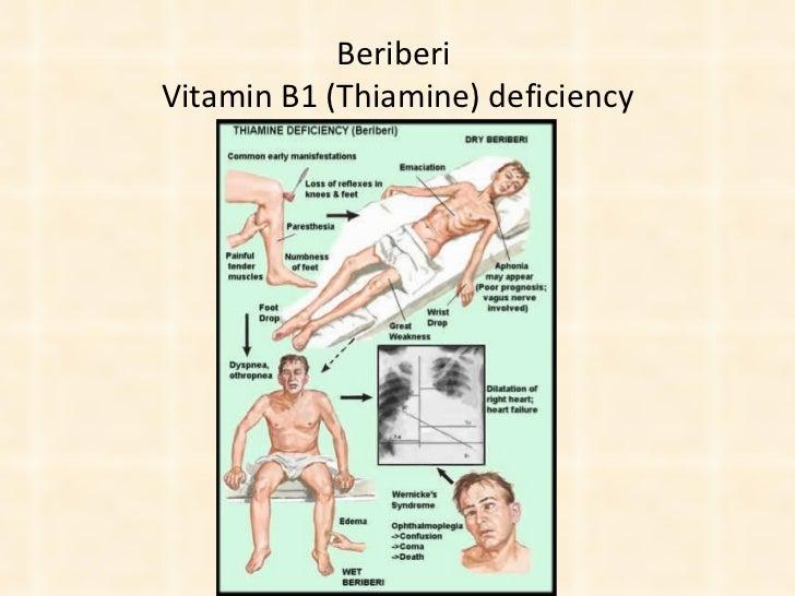Beriberi  Vitamin B1 (Thiamine) deficiency