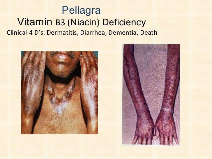 Pellagra  Vitamin  B3 ( Niacin) Deficiency  Clinical-4 D's: Dermatitis, Diarrhea, Dementia, Death