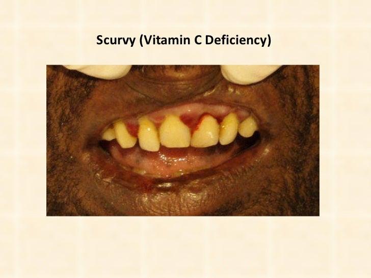 Scurvy (Vitamin C Deficiency)