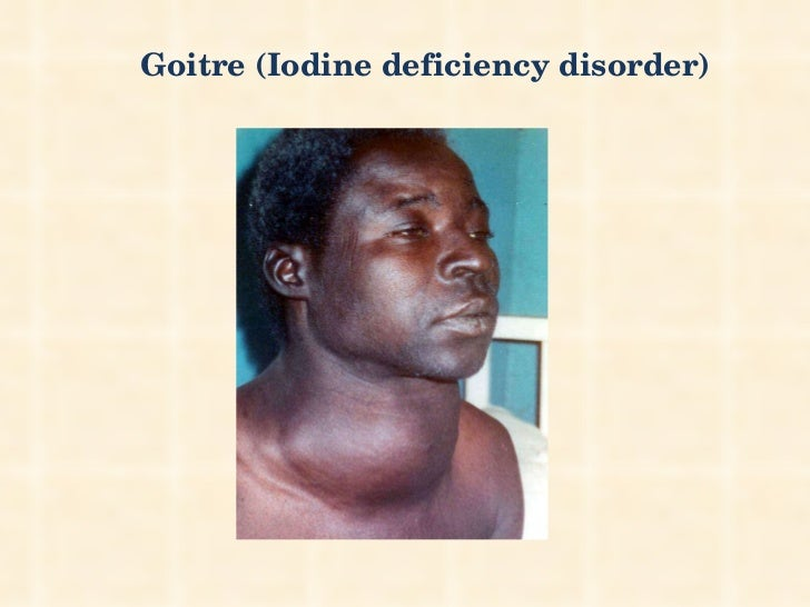 Goitre (Iodine deficiency disorder)