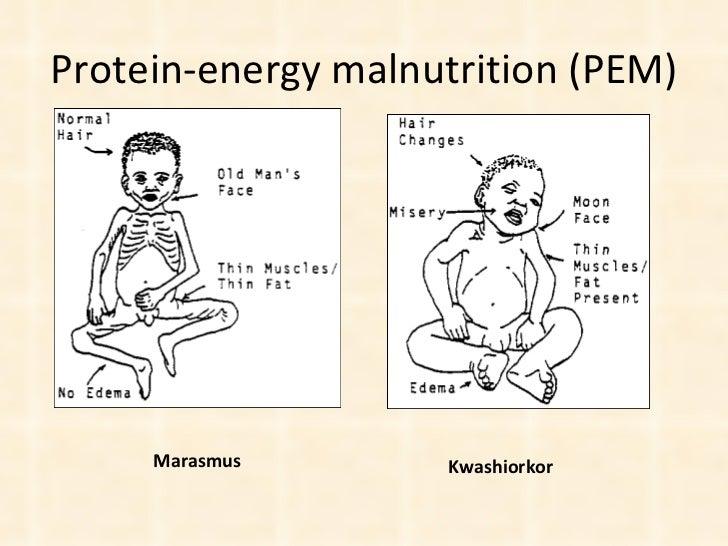 Protein-energy malnutrition (PEM) Marasmus Kwashiorkor