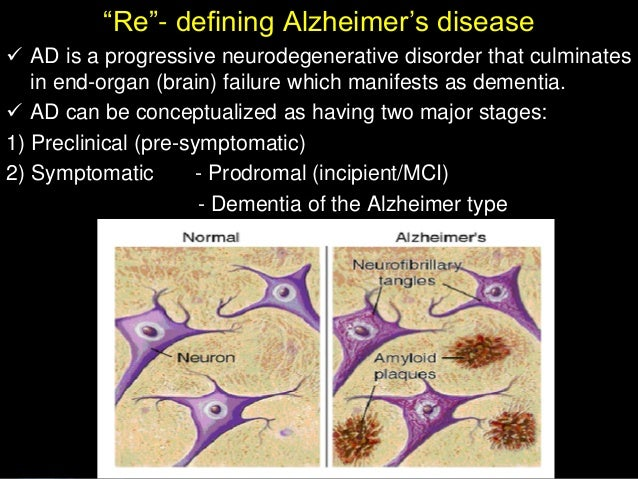 alzheimers disease nursing Late or end stage alzheimer's or other dementia usually requires intensive care get insight on what to expect, the role of the caregiver and late-stage care.