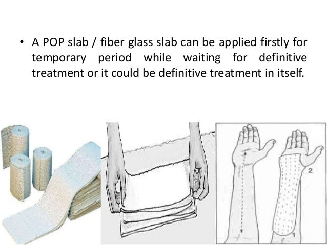 Assist in application & Removal of plaster cast