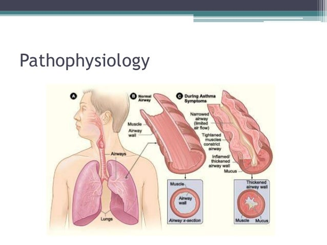 asthma pathophysiology essay Excerpt from essay : pathophysiology of asthma asthma is a common respiratory disease believed to be influenced or determined by genetic and environmental factors, such as allergens and respiratory viruses (chung.