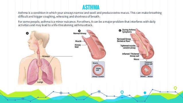 Asthma  Signs, Causes,triggers And First Aid. Sin Signs. Narrative Murals. Neko Atsume Stickers. License Plate Decals. Activity Signs Of Stroke. Basketball Fan Signs Of Stroke. Gruffalo Banners. Light Up Signs