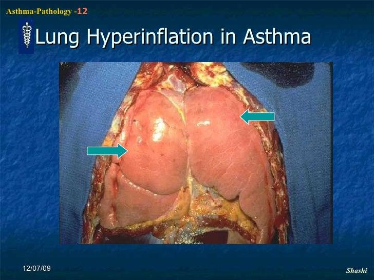 Asthma Pathophysiology N