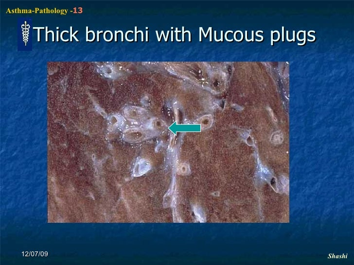 how to break mucus in lungs