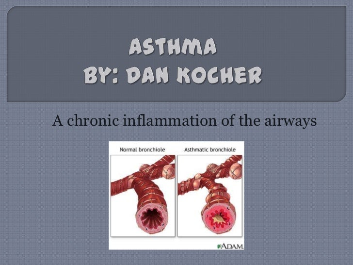 AsthmaBy: Dan Kocher<br />A chronic inflammation of the airways<br />
