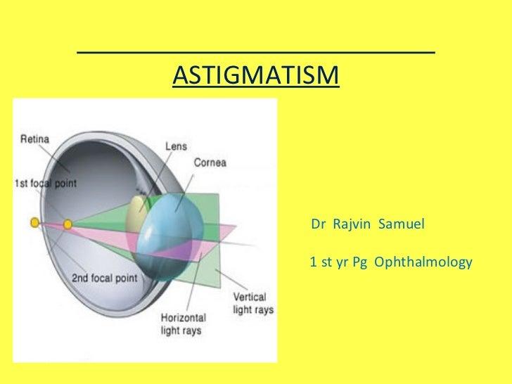 ASTIGMATISM Dr  Rajvin  Samuel 1  1 st yr Pg  Ophthalmology