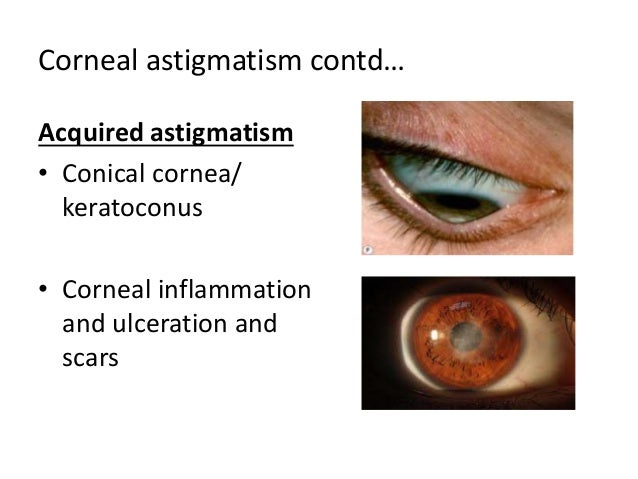 astigmatism, presbyopia and aphakia, Skeleton