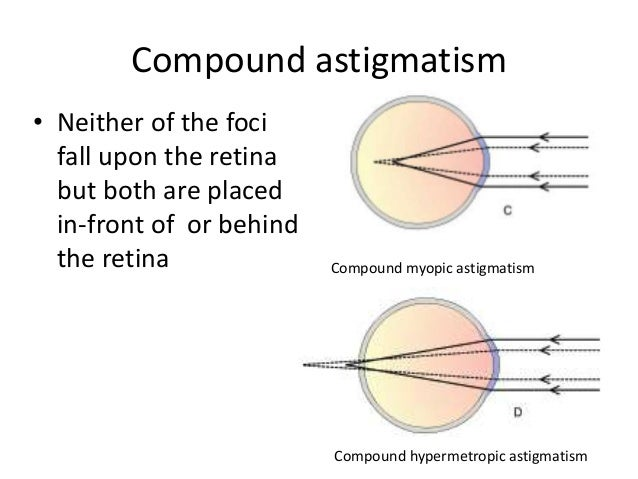 compound myopic astigmatism