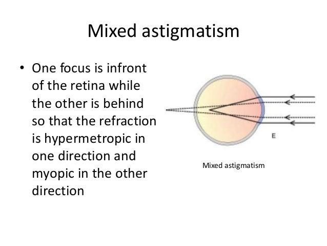 Astigmatism Presbyopia And Aphakia