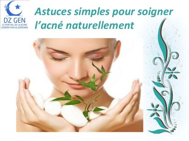 Astuces simples pour soigner l'acné naturellement  Pour plus de modèles : Modèles Powerpoint PPT gratuits  Page 1