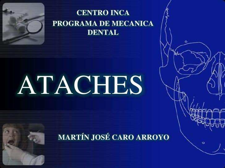 ATACHES<br />CENTRO INCA<br />PROGRAMA DE MECANICA DENTAL<br />MARTÍN JOSÉ CARO ARROYO<br />