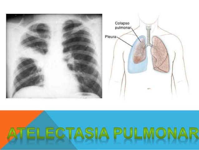 COLAPSO PULMONAR Son regiones pulmonares colapsadas donde no se realiza el intercambio gaseoso.