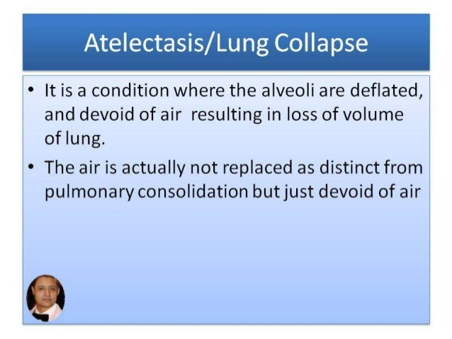 atelectasis/lung collapse part-1 by dr bashir ahmed dar associate pro…, Cephalic vein