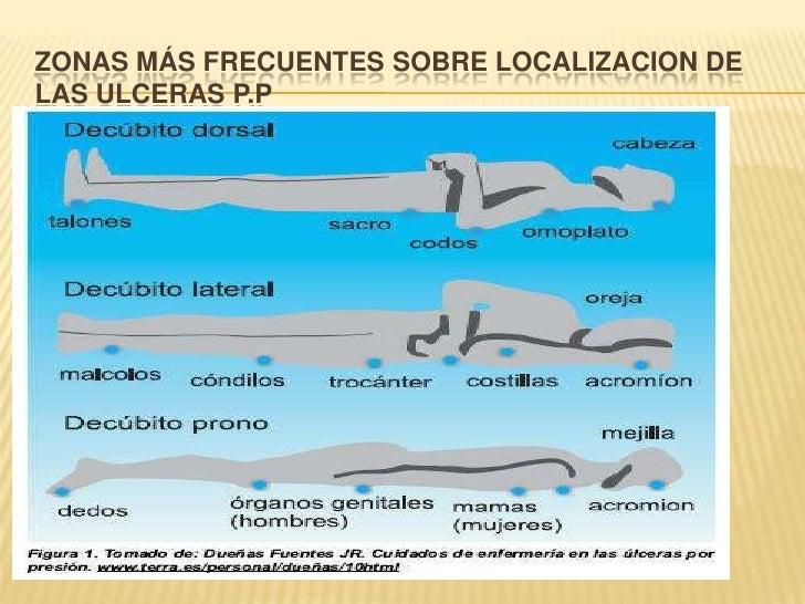 ZONAS MÁS FRECUENTES SOBRE LOCALIZACION DE LAS ULCERAS P.P<br />