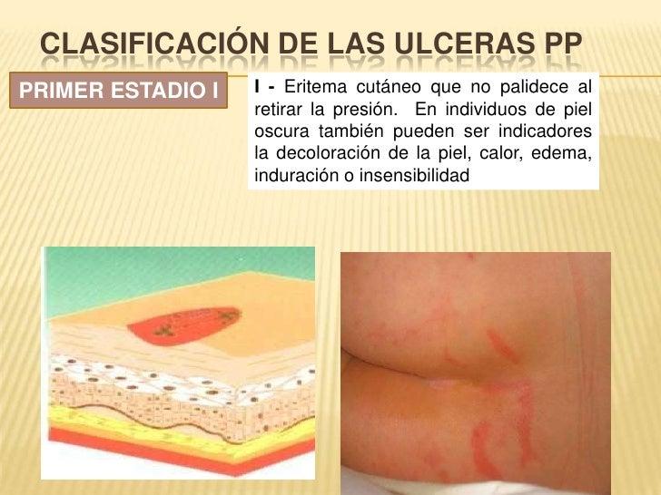 Clasificación de LAS ULCERAS PP<br />PRIMER ESTADIO I<br />I - Eritema cutáneo que no palidece al retirar la presión. En i...