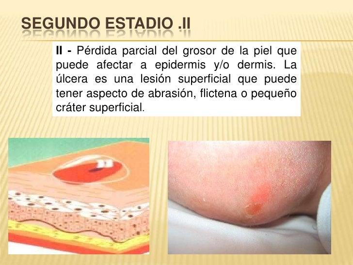 SEGUNDO ESTADIO .II<br />II - Pérdida parcial del grosor de la piel que puede afectar a epidermis y/o dermis. La úlcera es...