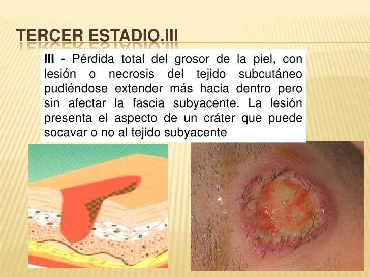 TERCER ESTADIO.III<br />III - Pérdida total del grosor de la piel, con lesión o necrosis del tejido subcutáneo pudiéndose ...