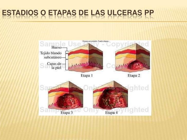 ESTADIOS O ETAPAS DE LAS ULCERAS PP<br />