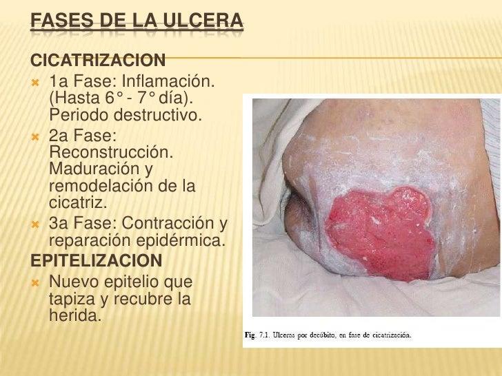 FASES DE LA ULCERA<br />CICATRIZACION <br />1a Fase: Inflamación. (Hasta 6° - 7° día). Periodo destructivo. <br />2a Fase:...