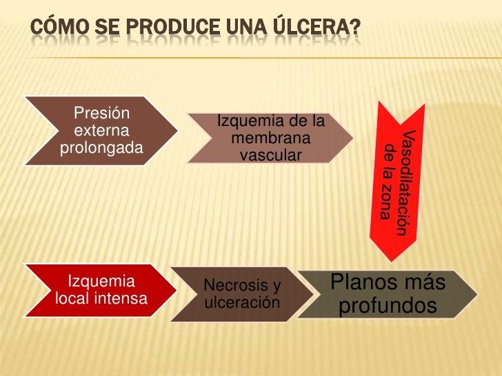 Cómo se produce una úlcera?<br />