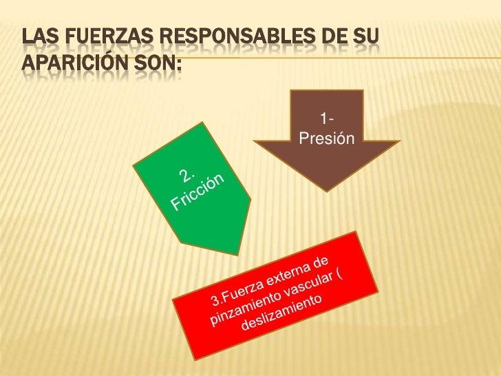 Las fuerzas responsables de su aparición son:<br />1- Presión<br />2. Fricción<br />3.Fuerza externa de pinzamiento vascul...