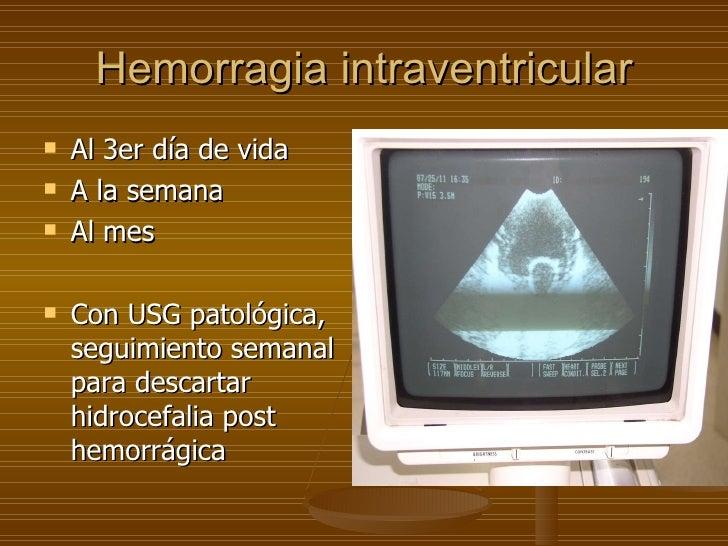 Hemorragia intraventricular <ul><li>Al 3er día de vida </li></ul><ul><li>A la semana </li></ul><ul><li>Al mes </li></ul><u...