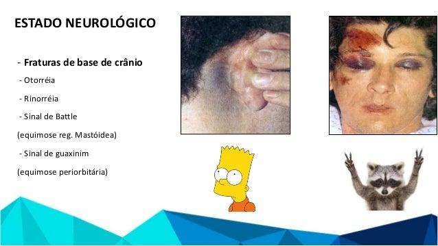 REFERÊNCIAS - Campbell Cirurgia Ortopédica, 12 ed - Faloppa - Propedeutica Ortopedica e Traumatologica, 1ed - Ortopedia e ...