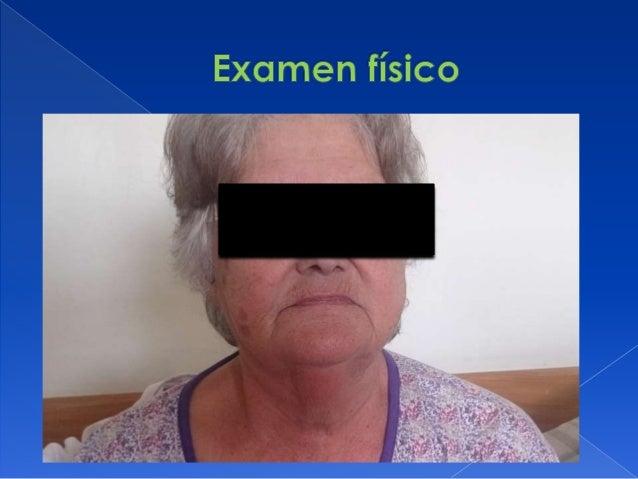  PP: MAV + bilateral no estertores  OA: no aumento cifosis dorsal, no dolor a la palpación calota, huesos largos y apófi...