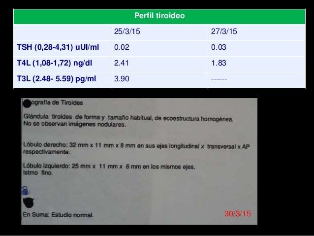 CONDUCTA: 30/3/15 - Metimazol 15 mg/día. - Sugerimos mantener internado por riesgo de reiterar taquicardia. - Nuevo contro...