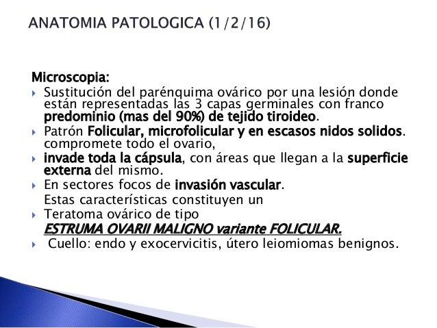 Microscopia:  Sustitución del parénquima ovárico por una lesión donde están representadas las 3 capas germinales con fran...