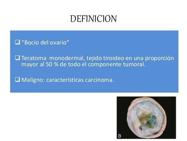 CLASIFICACION a) TIPICO b) VARIANTE NEOPLASIA NO TIROIDEA a) Variante carcinoide b) Variante Tu Bremer c) Variante cistoad...