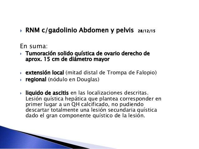  RNM c/gadolinio Abdomen y pelvis 28/12/15 En suma:  Tumoración solido quística de ovario derecho de aprox. 15 cm de diá...